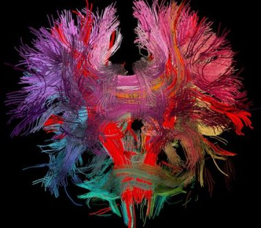 Neural Connections of the Brain via Flickr CC.